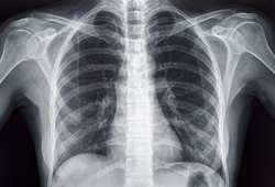 Walking for Imaging Facility of Chest