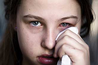 young woman dabbing eye with conjunctivitis